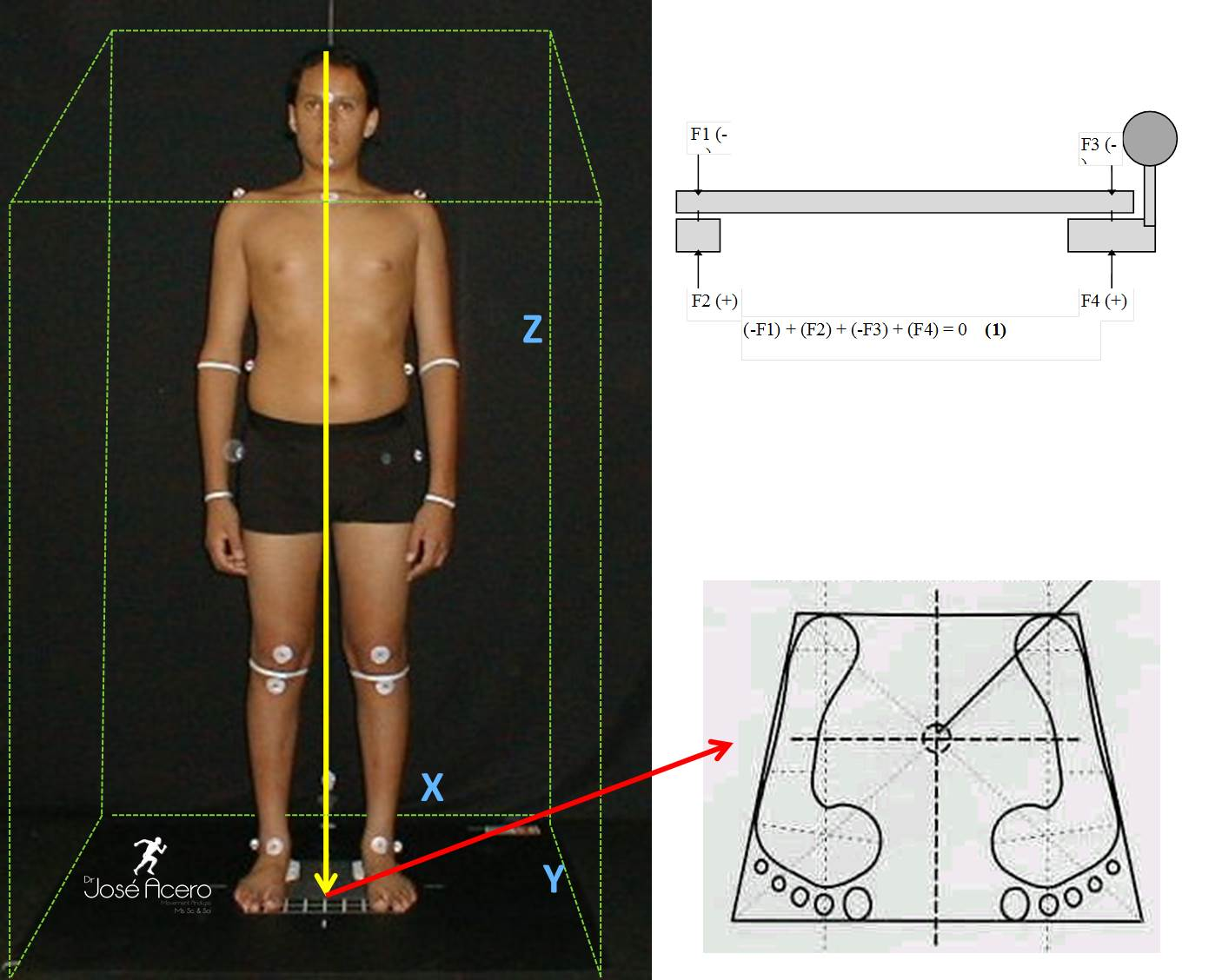 Antropometr 237 A Biomec 225 Nica Localizaci 243 N Triplanar 3p Del